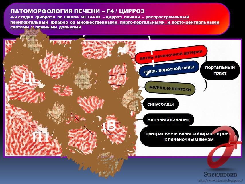 Цирроз печени – F_4 стадия фиброза при 3 генотипе вируса HCV (схема)