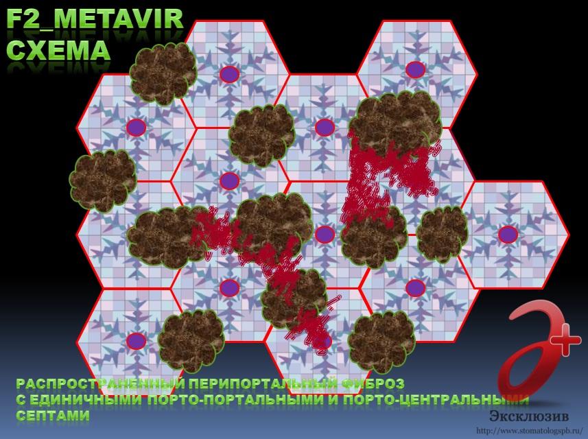Генотип 3 гепатита С, фиброз F_2 стадии (схема), темп фиброзирования от F_1 ст. до F_2 ст. – не менее 0,099 усл. ед. фиброза / 12 мес.