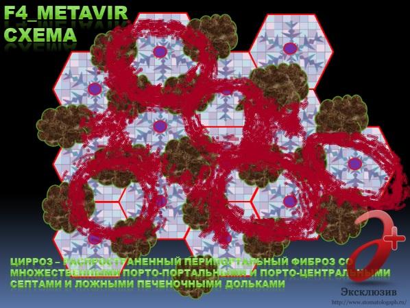 Генотип 3 вируса гепатита С, фиброз F_4 стадии (схема), темп фиброзирования от F_3 ст. до F_4 ст. – не менее 0,171 усл. ед. фиброза / 12 мес.