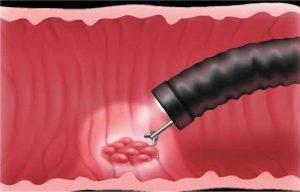 Как проводится биопсия кишечника?