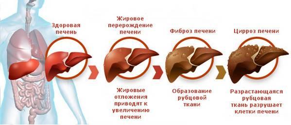 Что происходит при циррозе печени?