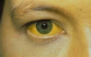 Признак печеночной комы - желтизна кожи