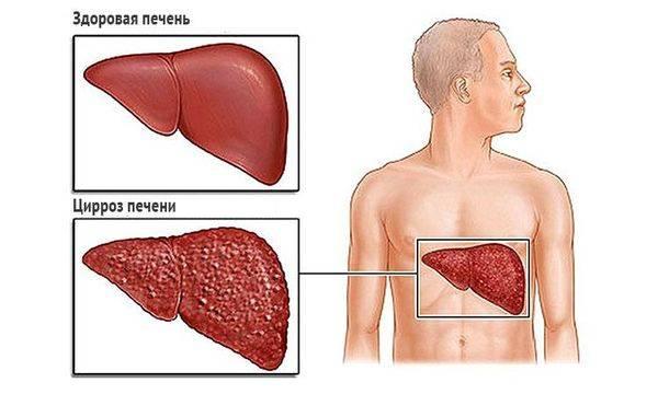 Цирроз – хроническое воспаление печени