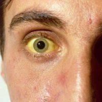 лечится или нет гепатит с