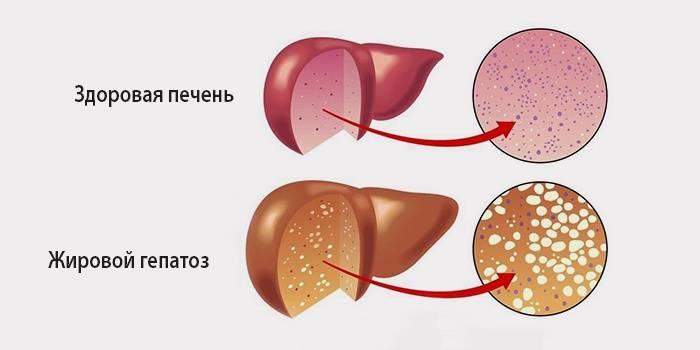 Сравнение здоровой печени и больной гепатозом
