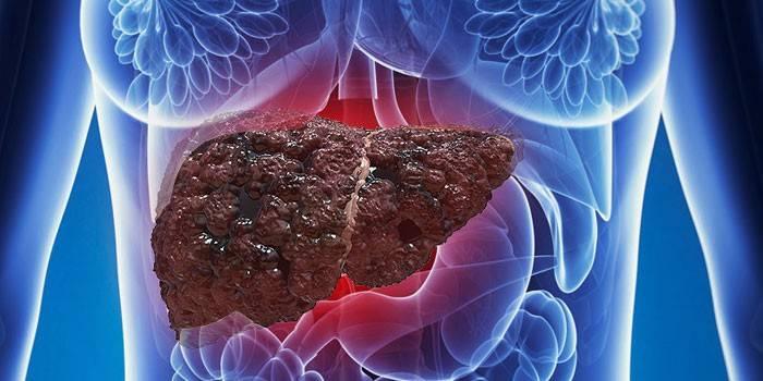Печень в организме женщины, пораженная жировым гепатозом