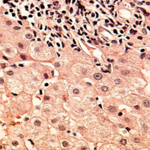 Структура печеночных тканей