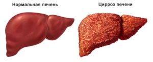 Как выглядят высыпания на коже при болезнях печени