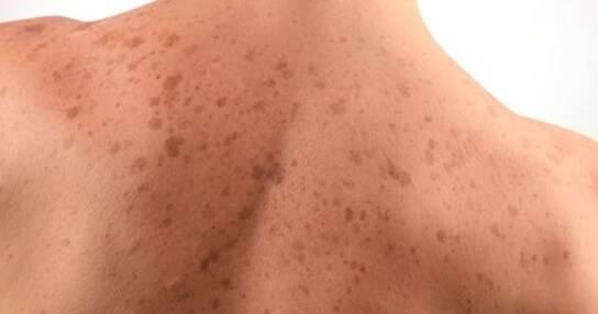печеночные пятна на спине