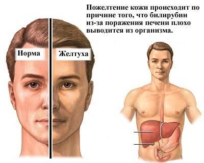симптомы повышеного билирубина