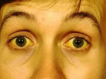 Какой показатель билирубина может быть при синдроме жильбера