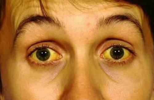 Иктеричность склер глаз