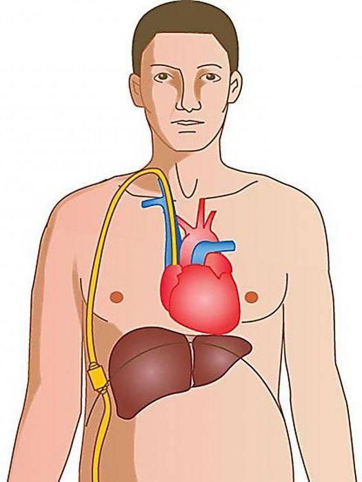 асцит при циррозе печени лечение