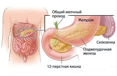 Фиксированный конкремент в шейке желчного пузыря