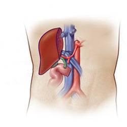 Пересадка печени при циррозе