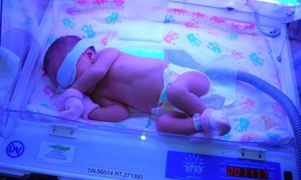 Снизить содержание билирубина в крови у новорожденного можно при помощи кварцевания