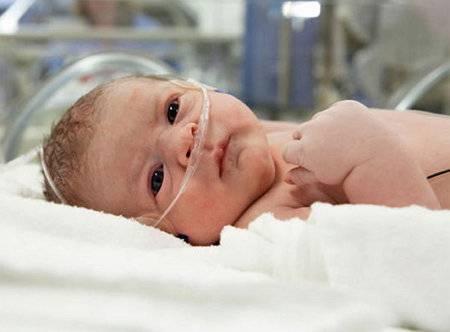 Норма билирубина у новорожденных, показатели и отклонения от них