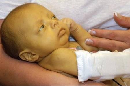 Билирубин у новорожденных в один месяц